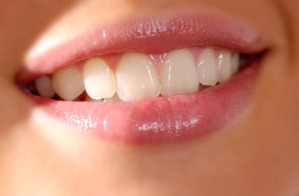 belle dents blanches suite à  un blanchiment au laser.<br /> <br /> Mooie witte tanden dankzij bleaching met de laser