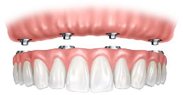 Een klikprothese of klikgebit op vier implantaten. Het volwaardig alternatief voor een volledig brugwerk.