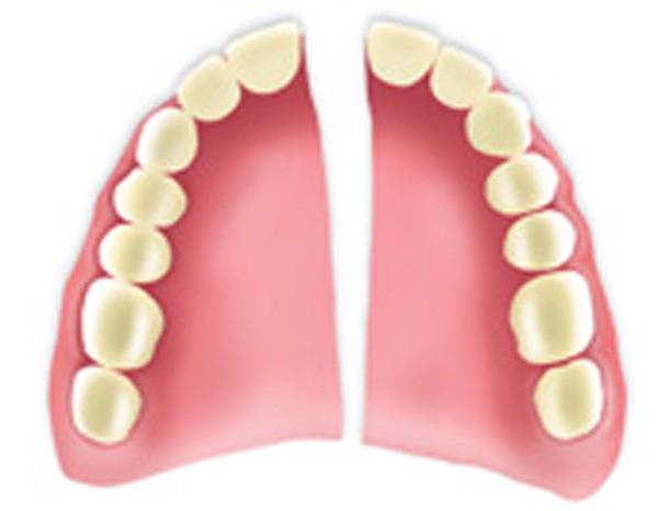 Bij Dental Clinics kan u ook terecht om een gebroken tandprothese te herstellen. Wij hebben ons eigen tandlabo en uw gebit zal snel en met de beste technieken gerepareerd worden.